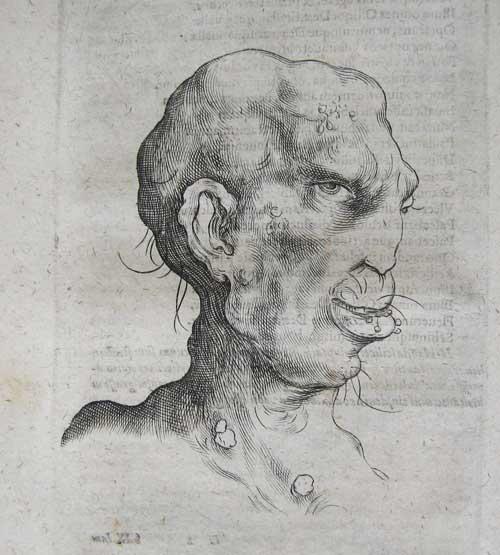 Syphilitic-head